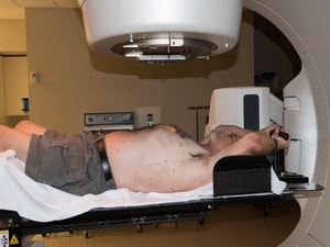 Caution: Higher Radiation Dose Linked to Worse NHL Outcomes