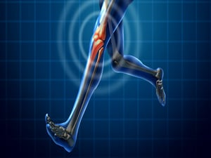 $2.3 Million NIH Grant for Exercise-After-Injury Research