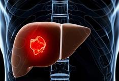 Hepatic cancer emedicine - Papillary thyroid cancer emedicine