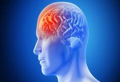 Ischemic Stroke Practice Essentials Background Anatomy