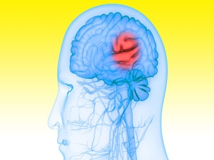 Disabling Stroke Reduced With Ticagrelor After Minor Stroke, TIA