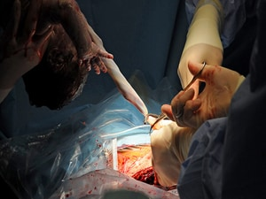 Vaginal Cleansing Protocol Curbs Deep SSIs After Cesarean