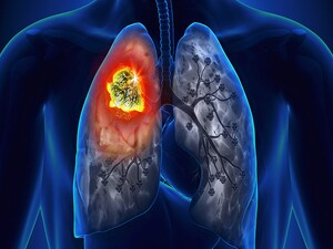 'Unprecedented' Long-term Survival After IO in Pretreated NSCLC