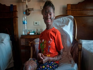 Despite Ichthyosis Recommendations, 'Many Questions Still Exist'