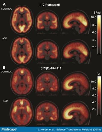 New Study Adds Key Piece To Autism >> Pet Scans Show No Brain Gaba Receptor Deficiency In Autism