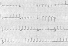 Cardiac Tamponade: Practice Essentials, Background