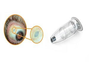 Implant Reduces Treatment Burden in Wet Macular Degeneration