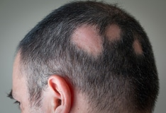 Hair Loss and Its Management in Children