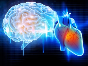 Incidence of Stroke, But Not MI, Increasing in Young People