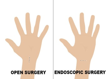 Endoscopic Versus Open Procedures For Carpal Tunnel Release