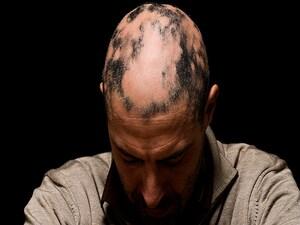 JAK Inhibitors Promising for Alopecia Areata
