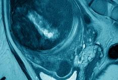 Gynecologic Myomectomy Treatment & Management: Medical Therapy