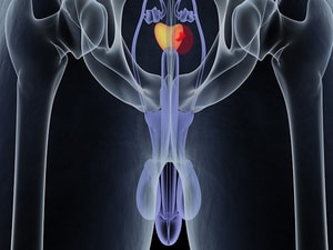 Active Surveillance for Prostate Cancer Triples in US