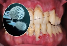 Gum Disease Strongly Implicated in Alzheimer's