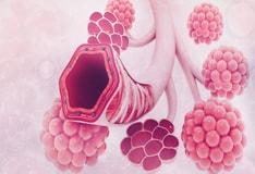 Restrictive Lung Disease: Background, Pathophysiology, Etiology