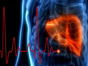 Mortality Rate for Chronic Liver Disease Underestimated