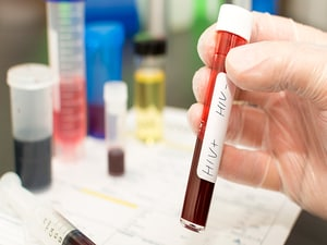 Rethinking the Definition of Cure as Patients With HIV Wait