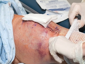 CMS Joint Replacement Rules Debated, Comment Period Extended
