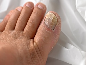 Pulse vs Continuous Therapy for Toenail Onychomycosis
