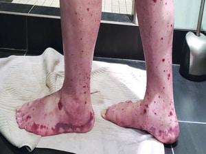 VEXAS: A Novel Rheumatologic, Hematologic Syndrome