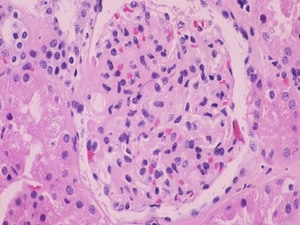Targeted Drug First to Show Real Promise in IgA Nephropathy