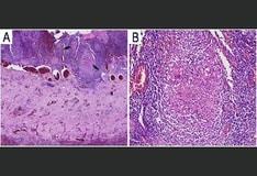 prostatitis crónica medscape