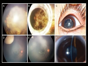 Ophthalmologists Called to Catch Cancers Earlier
