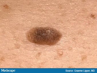 Diagnostic Errors in Patients With Skin Findings