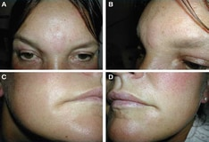 Restylane, Juvederm (hyaluronic acid, non-animal stabilized