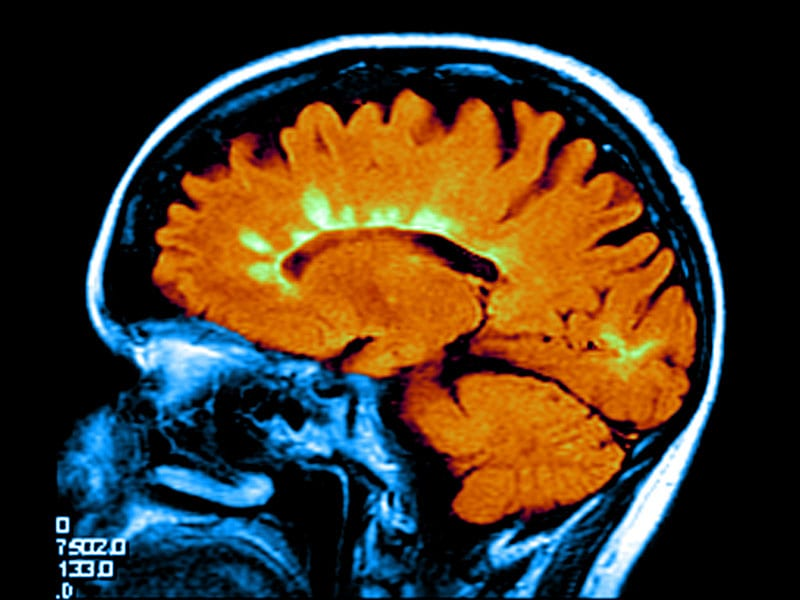 'Treating the MRI' in Multiple Sclerosis