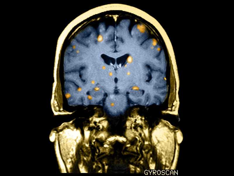 evolve case studies brain attack And other study tools start studying hesi case studies brain attack stroke learn looking for evolve case study brain attack strokeneuro quizlet do you really.