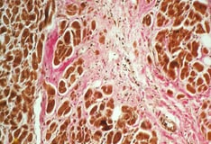 Dermatologic Manifestations of Cardiac Disease: Overview