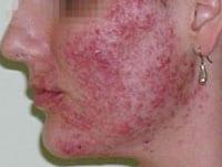 skin deep response Skin deep clinic - organic facial skin care skin deep clinic how to rejuvenate vagina oil herbs anti aging foundation best reviews.