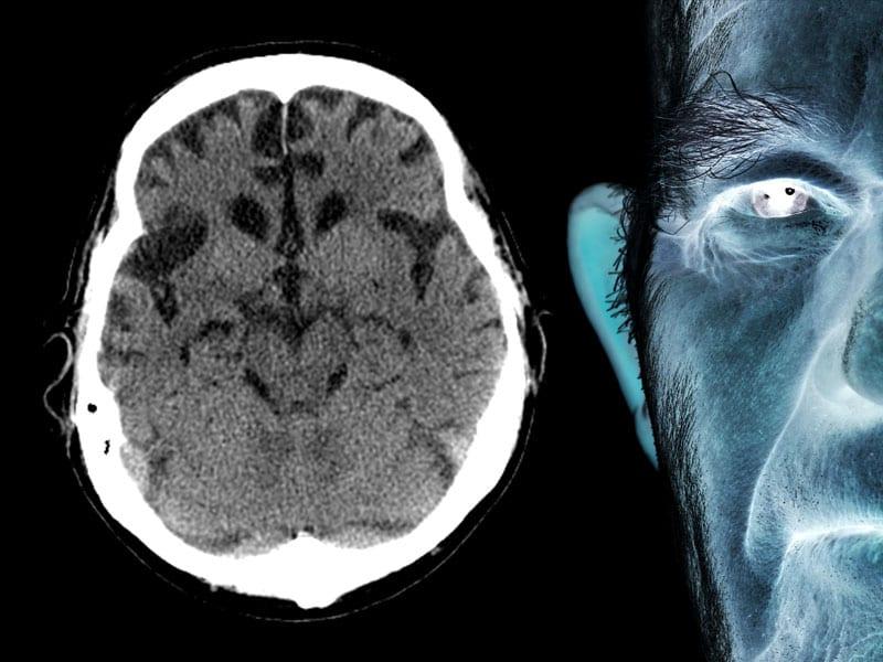Alzheimer Disease: Diagnostic Challenges