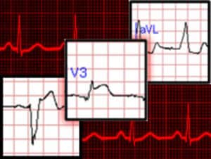 Are You Missing Subtle MI Clues on ECGs? Test Your Skills