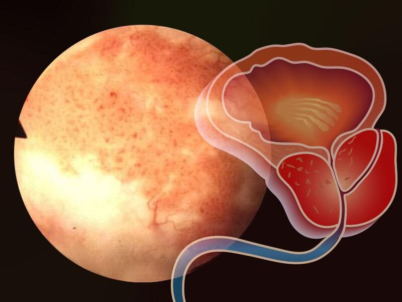 Sperm granulomas elevate psa