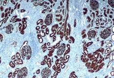 Chronic Kidney Disease Practice Essentials Pathophysiology Etiology