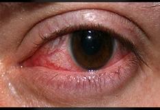 Acanthamoeba Infection Workup: Laboratory Studies, Imaging